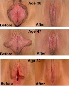 vagina before after sex